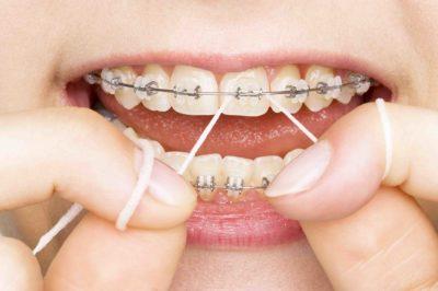 Denture Care- The Ignored Aspect