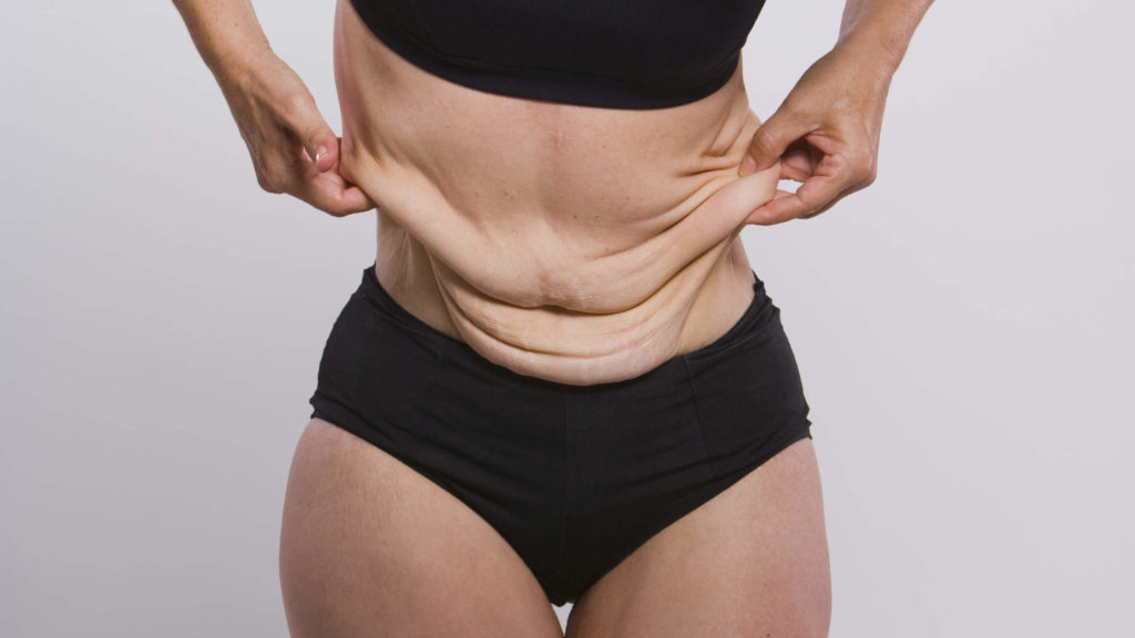 The Dangers Of Being Overweight And Why You need To Buy Xenical UK